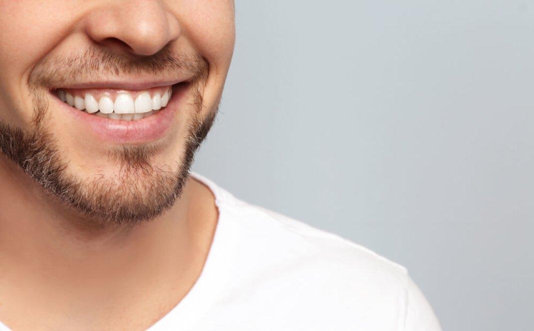 My-Dentist-Middlefield-Teeth-Whitening