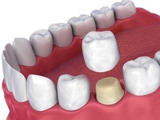 model of dental crown
