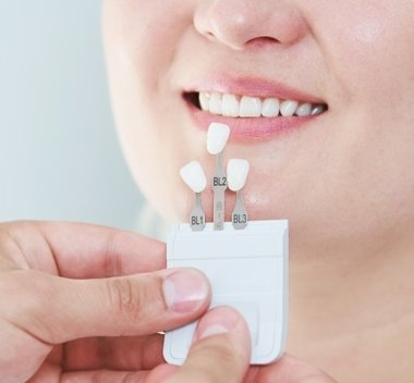 Dental-Veneers-My-Dentist