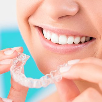 Invisible-Dental-Braces-My-Dentist