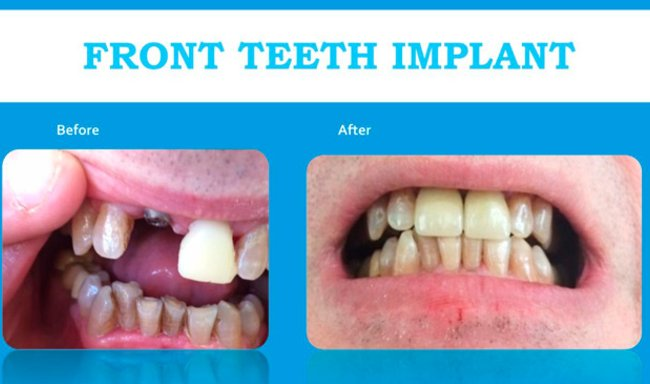 picture of front teeth implant